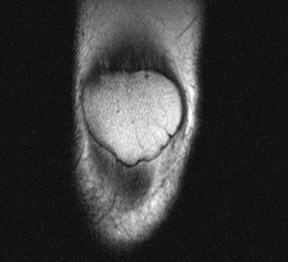 knee mri scan patella