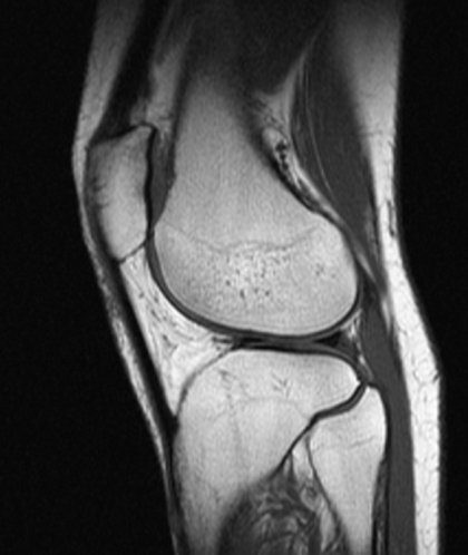 knee mri scan side